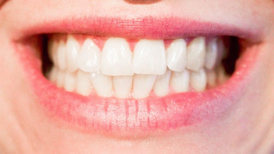 smile, teeth, mouth